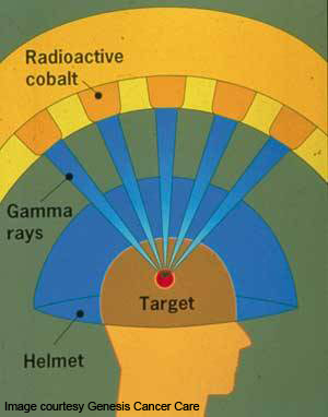 Diagrammatic representation of Gamma Knife radioactive beams