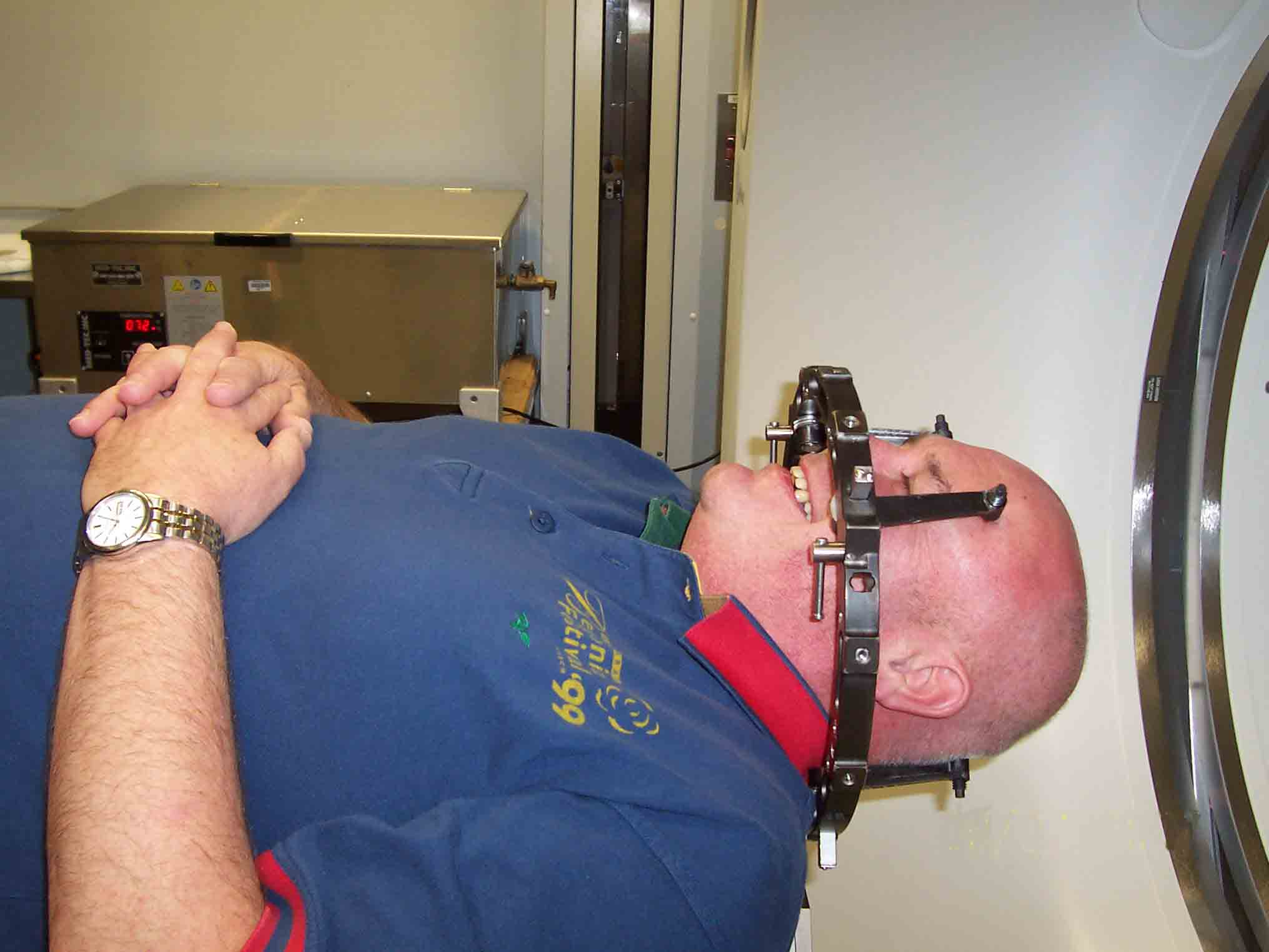 Radio Therapy Head Frame used for Acoustic Neuroma