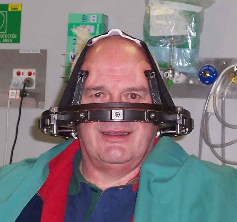 Acoustic Neuroma Association Australia Treatment